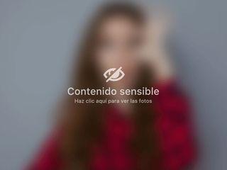 Lipo Caso1
