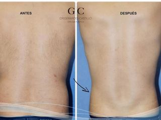 Antes y despues de liposuccion