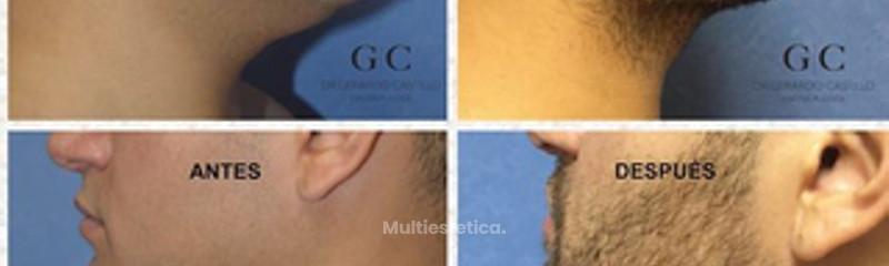 Antes y despues de liposuccion de cuello