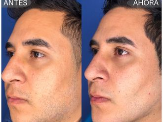 Cirugía facial-645072