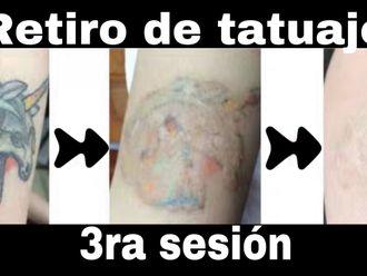 Eliminación de tatuajes-644740