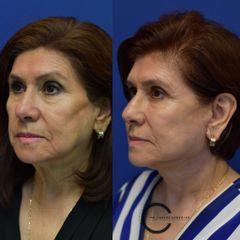 Facelift + neck lift - Dr. Carlos González Alvarado