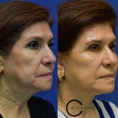Facelift + Necklift - Dr. Carlos González Alvarado