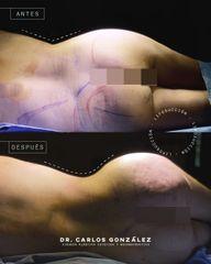Liposucción - Dr. Carlos González Alvarado