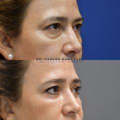 Blefaroplastia - Dr. Carlos González Alvarado