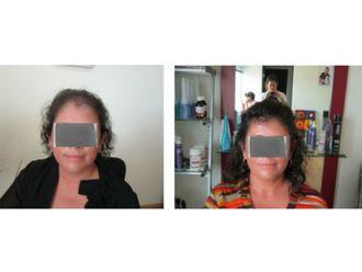 Trasplante de cabello-609983
