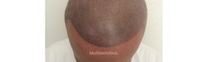 micropigmentación 2