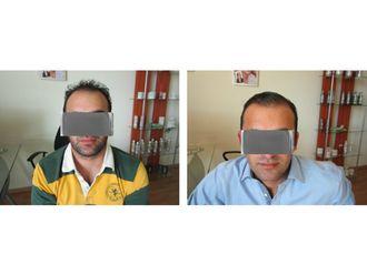 Trasplante de cabello-610017