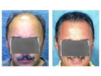 Trasplante de cabello-610018