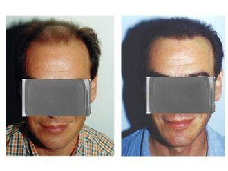 Trasplante de cabello-610019