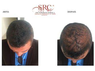 Alopecia-623219