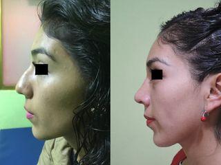Rinoplastía (antes y después)