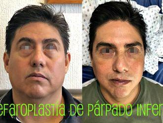 Blefaroplastia - 662658