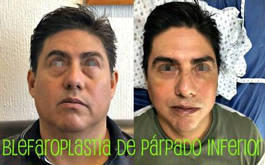 Blefaroplastia Dr. Alejandro Cruz Segura