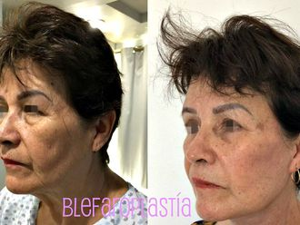 Blefaroplastia - 662660