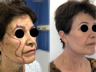 Rejuvenecimiento facial-663070
