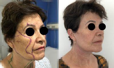 Rejuvenecimiento facial - Dr. Alejandro Cruz Segura