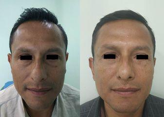 Blefaroplastia hombre - Dr. Alejandro Cruz Segura