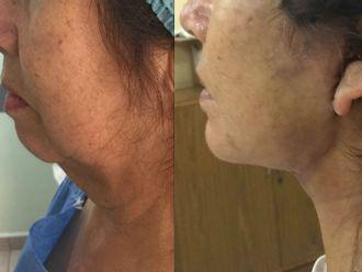 Cirugía de papada - 663417