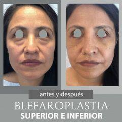 Blefaroplastia - Dr. Alejandro Cruz Segura