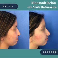 Rinomodelación - Dr. Alejandro Cruz Segura