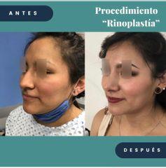 Rinoplastia - Dr. Alejandro Cruz Segura