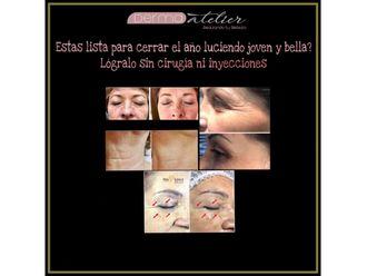 Rejuvenecimiento facial-632041