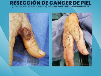 Cirugía plástica reconstructiva - 786160