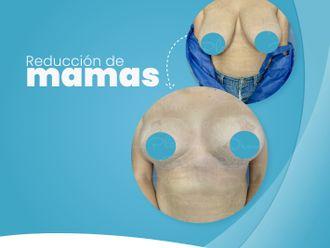 Reducción de mamas - 787987