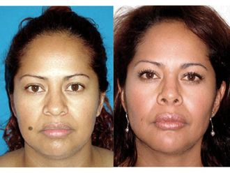 Cirugía facial-493843