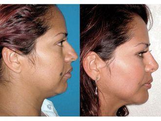 Cirugía facial-493844