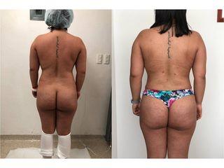 Liposucción - Topmedical