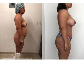 Abdominoplastia - Topmedical