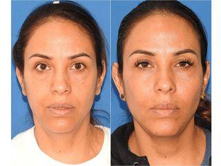 Rejuvenecimiento facial - Topmedical