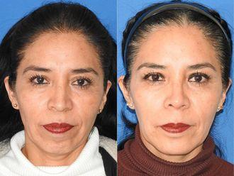 Rejuvenecimiento facial-689845