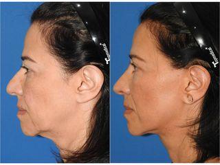 Liposucción de papada - Topmedical