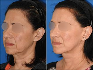 Cirugía de papada - Topmedical