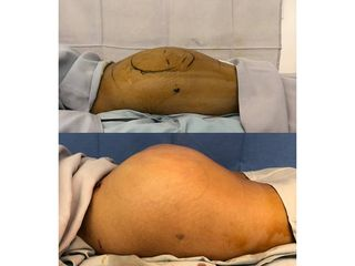 Gluteoplastia - Topmedical
