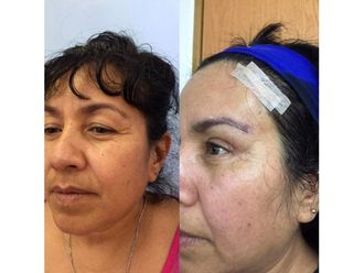 Rejuvenecimiento facial-639181