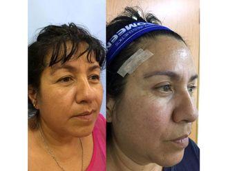 Rejuvenecimiento facial-639182
