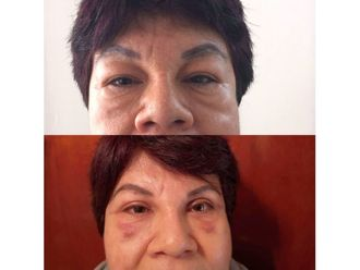 Rejuvenecimiento facial-639192