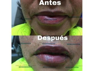 Aumento de labios - 642409