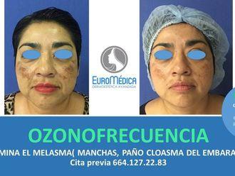 Radiofrecuencia-605756