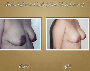 Da Vinci Plastic Surgery