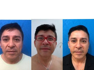 Cirugía facial-597843