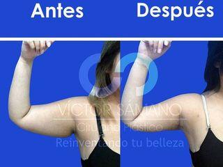 Antes y después de braquioplastia