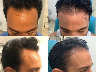 Trasplante de cabello - 701022