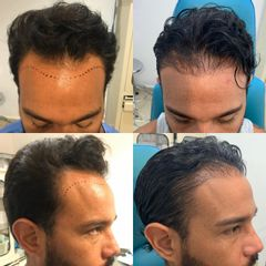 Trasplante de cabello - Dr. Víctor Genaro Sámano Guzmán