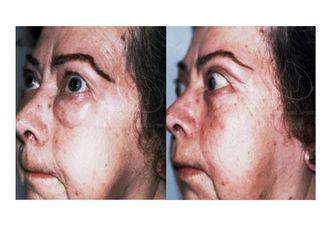 Blefaroplastia-623943