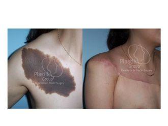 Cirugía para cicatrices-623946